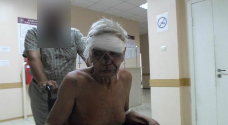 В Коми молодой мужчина бесчеловечно избил дедушку