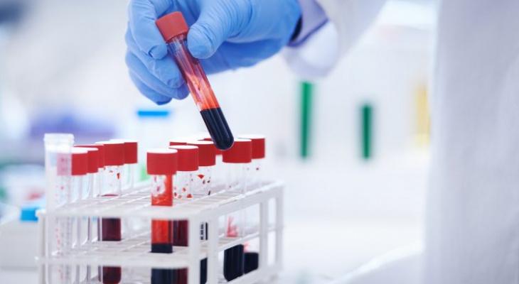 Топ-5 способов повысить гемоглобин без лекарств