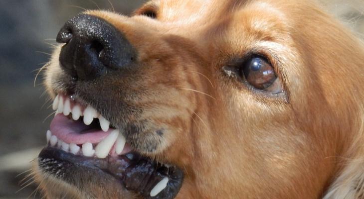 В Коми бродячие собаки изуродовали 4-летнего ребенка