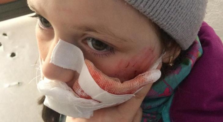 Под Сосногорском собака чуть не загрызла 9-летнюю девочку, ребенок направлен в больницу